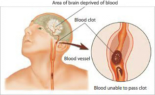 Signs of Stroke - Generations Magazine - February - March 2012